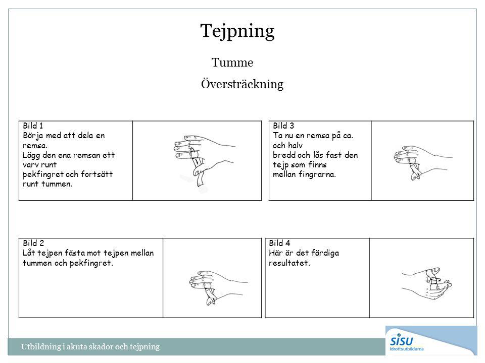 Tejpning Tumme Översträckning Utbildning i akuta skador och tejpning Bild 2 Låt tejpen fästa mot tejpen mellan tummen och pekfingret. Bild 1 Börja med