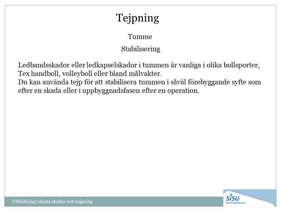 Tejpning Tumme Stabilisering Ledbandsskador eller ledkapselskador i tummen är vanliga i olika bollsporter, Tex handboll, volleyboll eller bland målvakter.