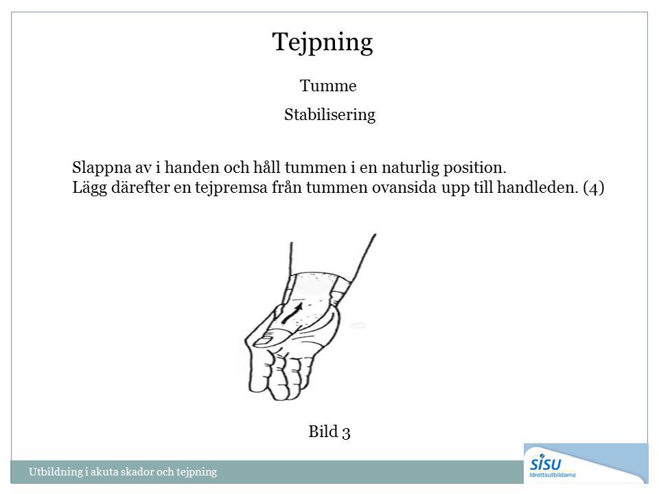 Tumme Stabilisering Bild 3 Slappna av i handen och håll tummen i en naturlig position. Lägg därefter en tejpremsa från tummen ovansida upp till handle
