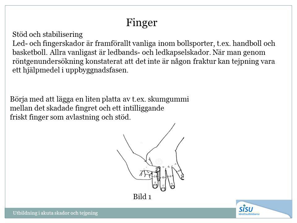 Utbildning i akuta skador och tejpning Finger Stöd och stabilisering Led- och fingerskador är framförallt vanliga inom bollsporter, t.ex. handboll och