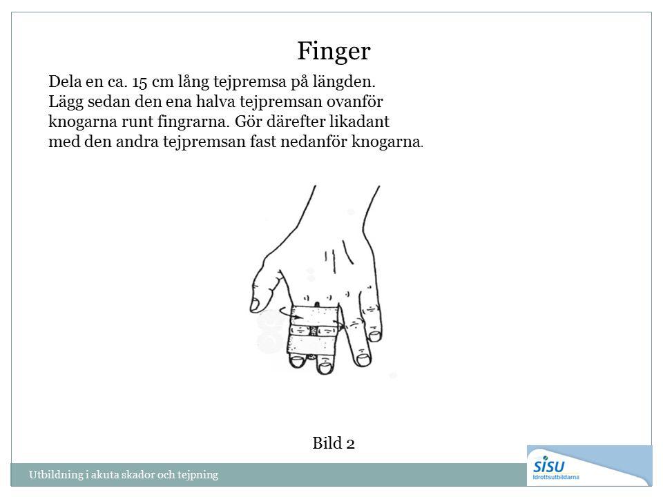 Utbildning i akuta skador och tejpning Bild 2 Finger Dela en ca. 15 cm lång tejpremsa på längden. Lägg sedan den ena halva tejpremsan ovanför knogarna