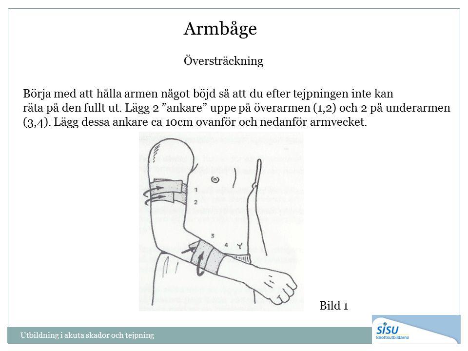 """Armbåge Översträckning Börja med att hålla armen något böjd så att du efter tejpningen inte kan räta på den fullt ut. Lägg 2 """"ankare"""" uppe på överarme"""
