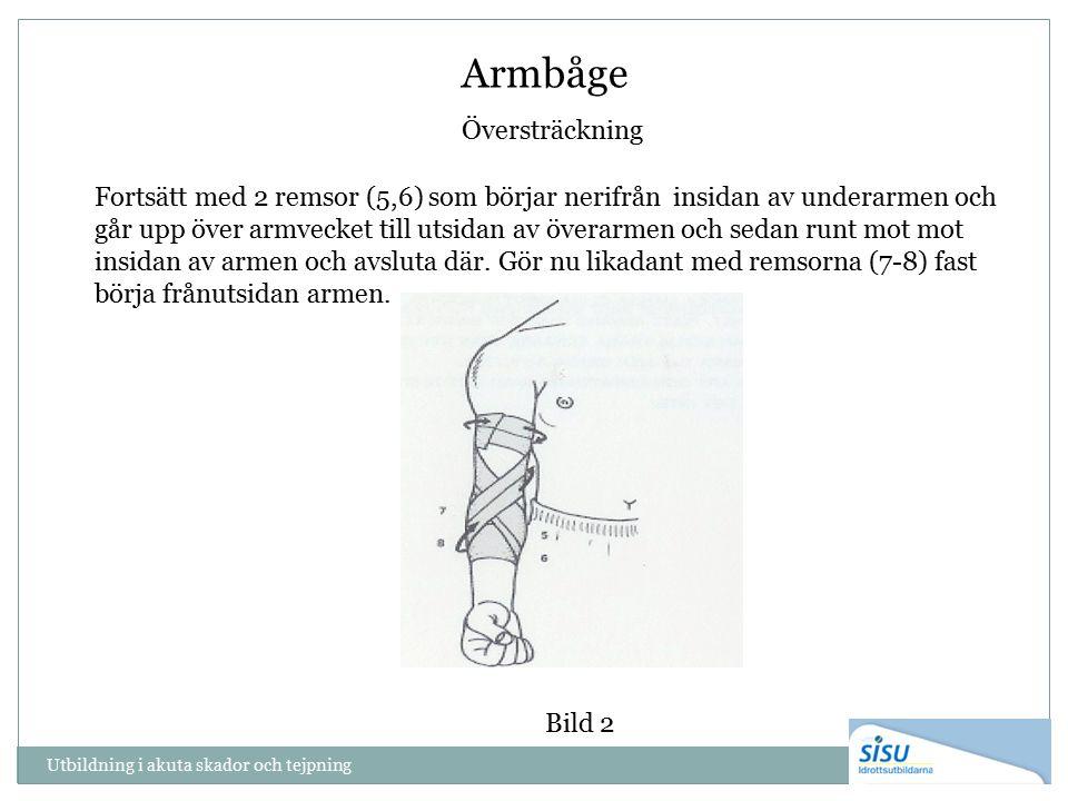 Armbåge Översträckning Utbildning i akuta skador och tejpning Fortsätt med 2 remsor (5,6) som börjar nerifrån insidan av underarmen och går upp över armvecket till utsidan av överarmen och sedan runt mot mot insidan av armen och avsluta där.