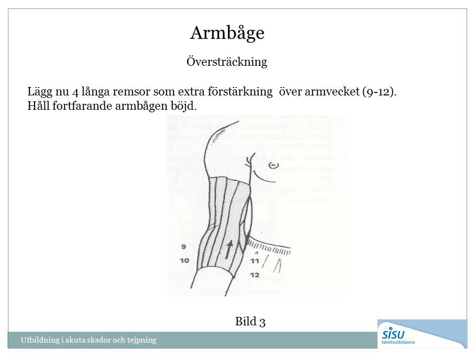 Armbåge Översträckning Utbildning i akuta skador och tejpning Lägg nu 4 långa remsor som extra förstärkning över armvecket (9-12).