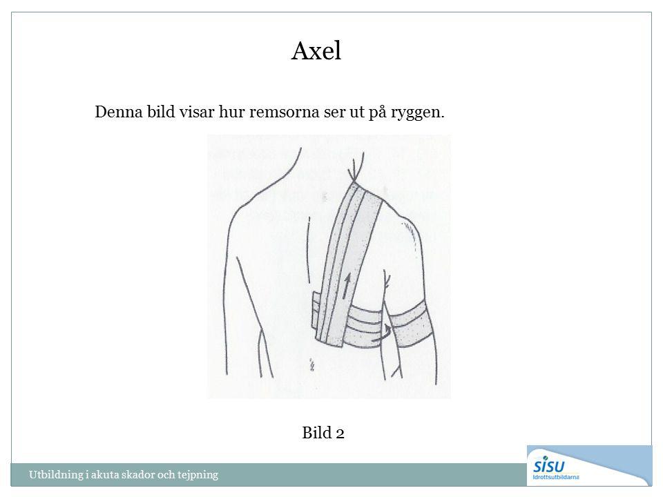 Utbildning i akuta skador och tejpning Bild 2 Axel Denna bild visar hur remsorna ser ut på ryggen.