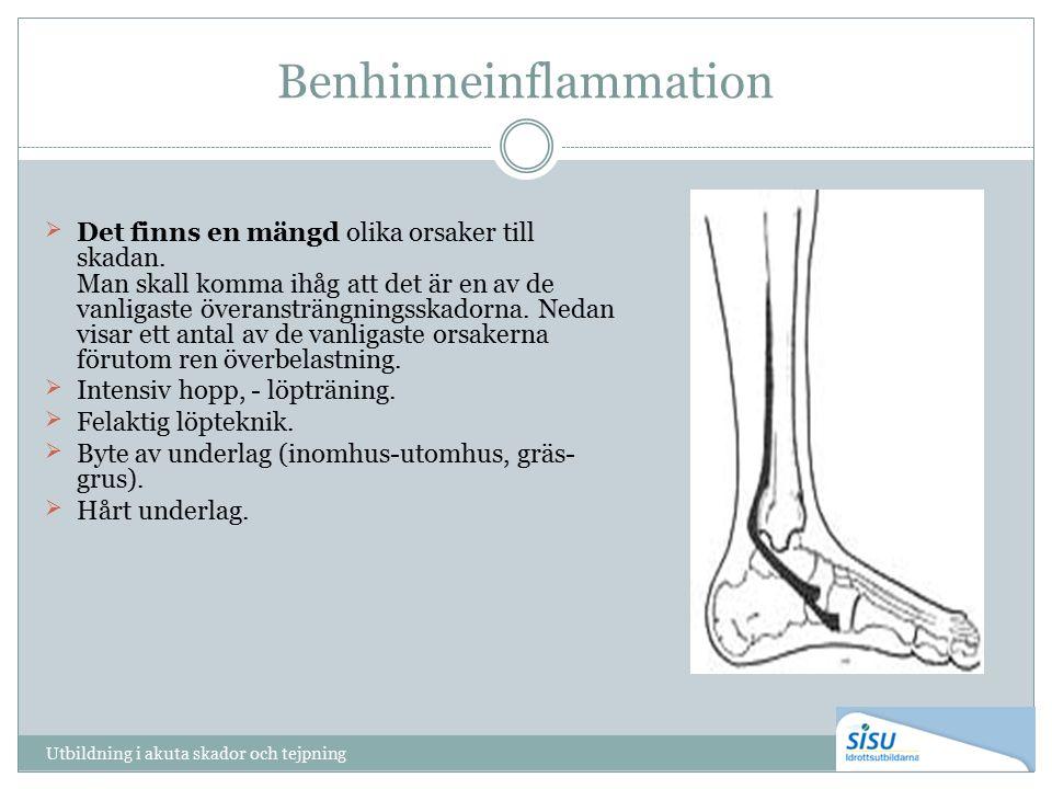 Benhinneinflammation Det finns en mängd olika orsaker till skadan.