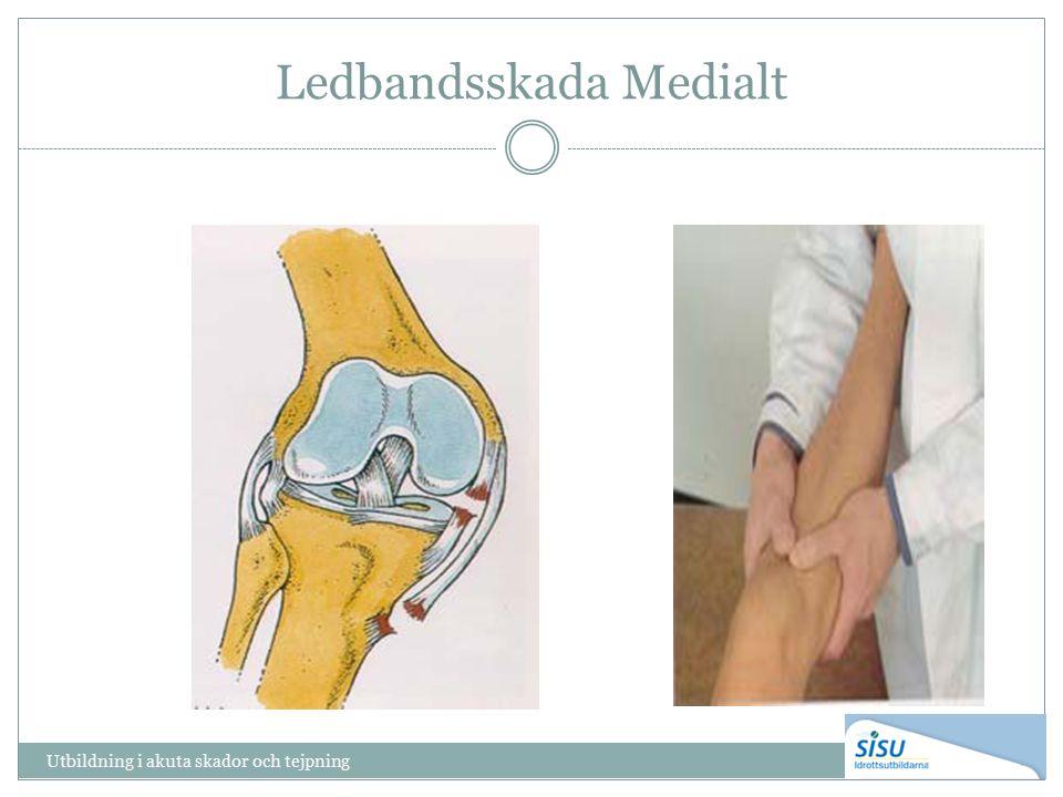 Ledbandsskada Medialt Utbildning i akuta skador och tejpning