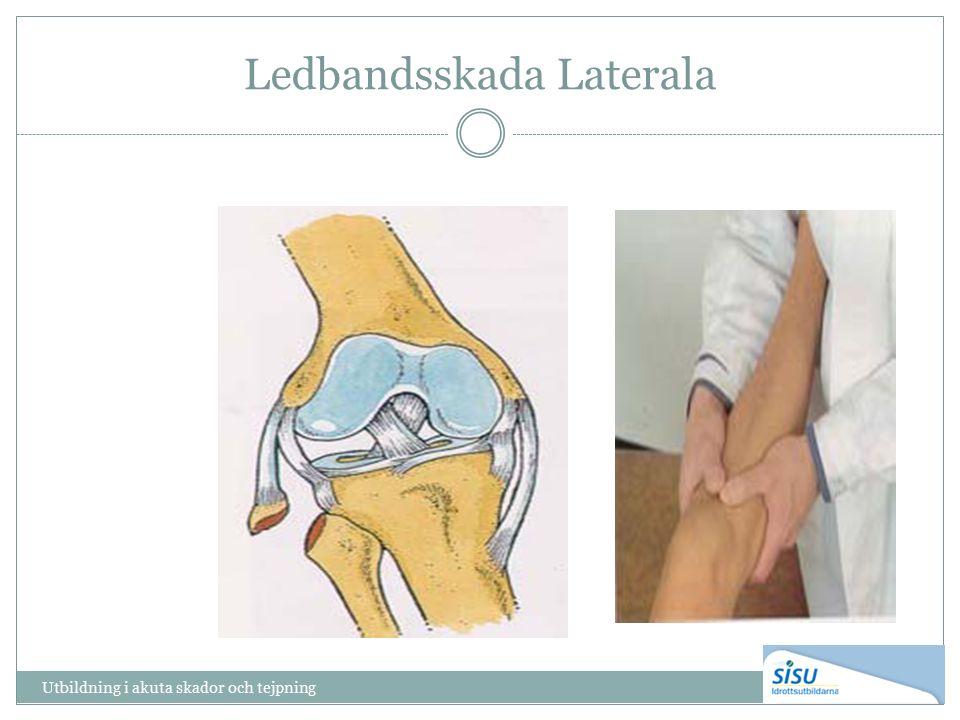 Ledbandsskada Laterala Utbildning i akuta skador och tejpning