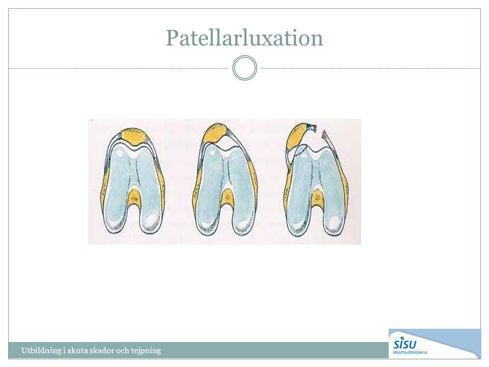Patellarluxation Utbildning i akuta skador och tejpning