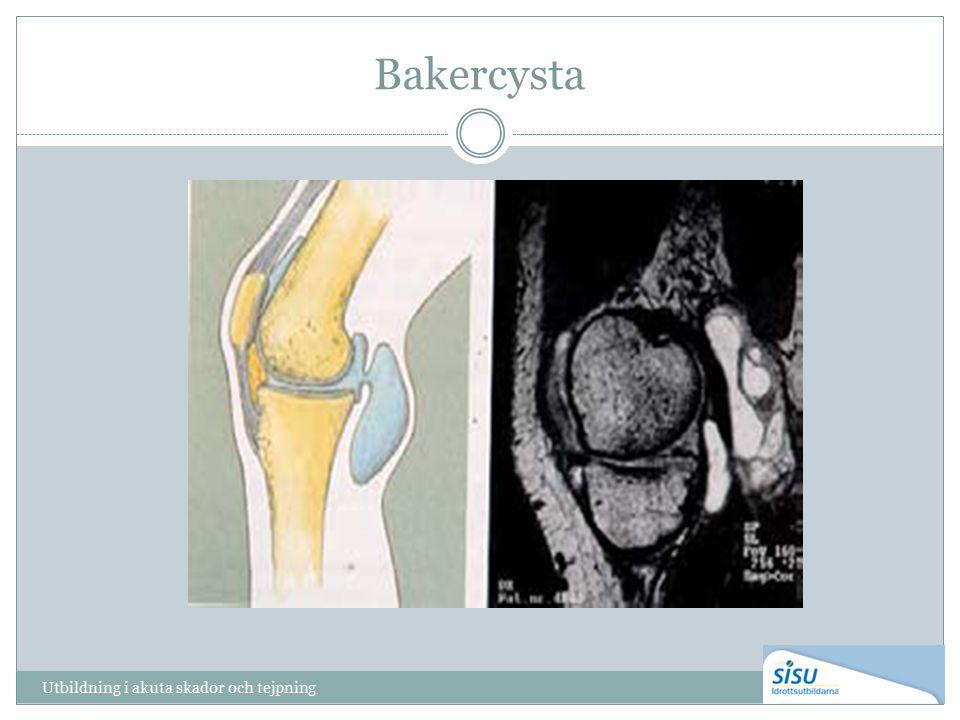Bakercysta Utbildning i akuta skador och tejpning