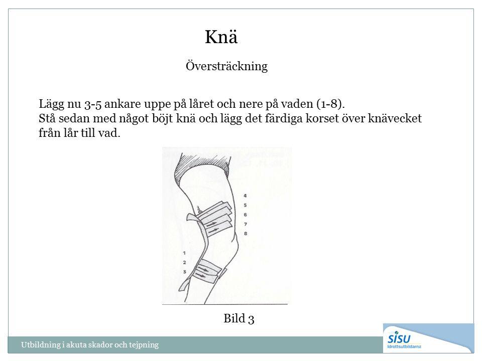 Utbildning i akuta skador och tejpning Knä Översträckning Bild 3 Lägg nu 3-5 ankare uppe på låret och nere på vaden (1-8).