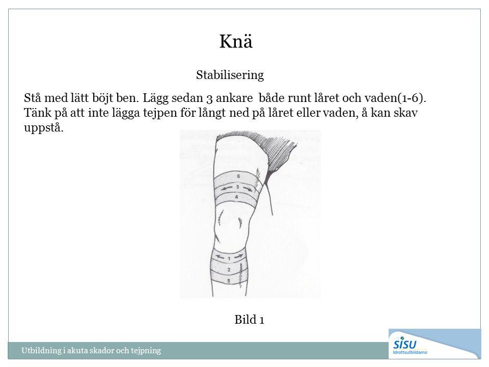 Utbildning i akuta skador och tejpning Knä Bild 1 Stabilisering Stå med lätt böjt ben. Lägg sedan 3 ankare både runt låret och vaden(1-6). Tänk på att