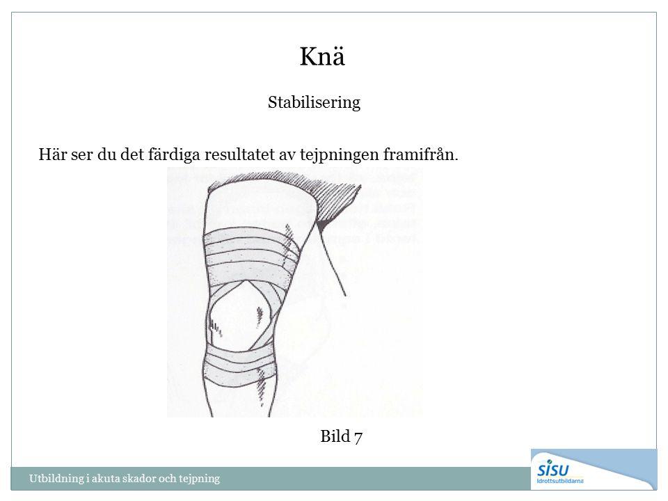 Utbildning i akuta skador och tejpning Knä Bild 7 Stabilisering Här ser du det färdiga resultatet av tejpningen framifrån.