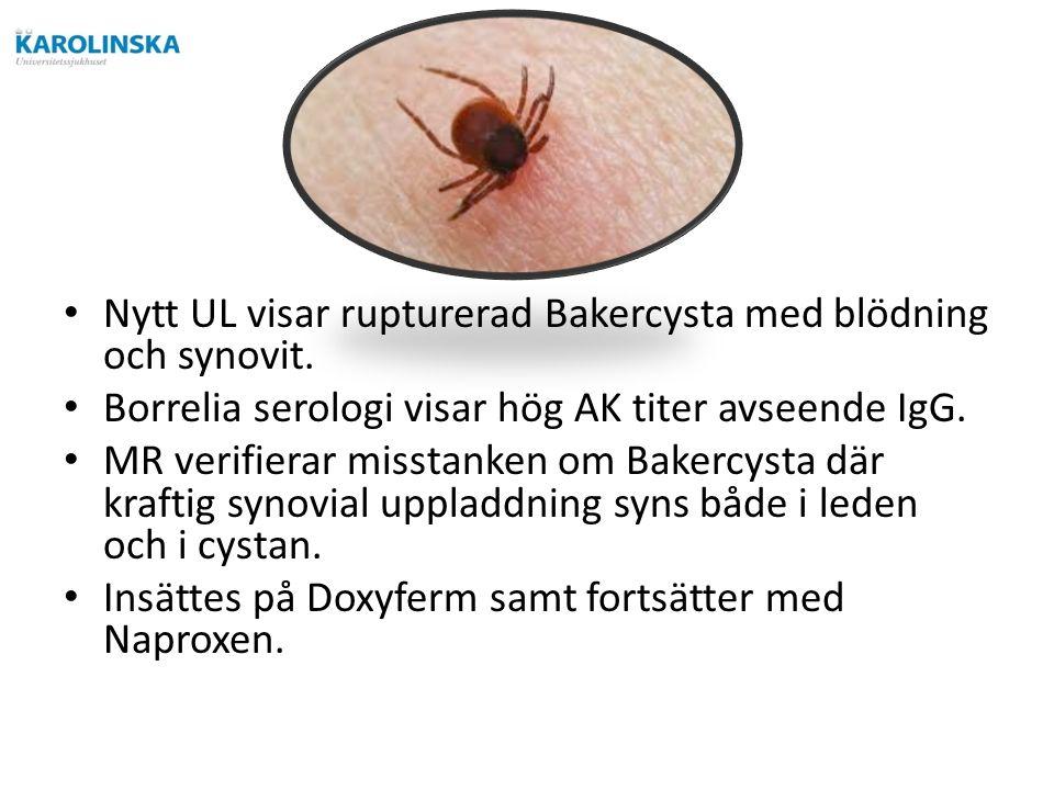 Nytt UL visar rupturerad Bakercysta med blödning och synovit.