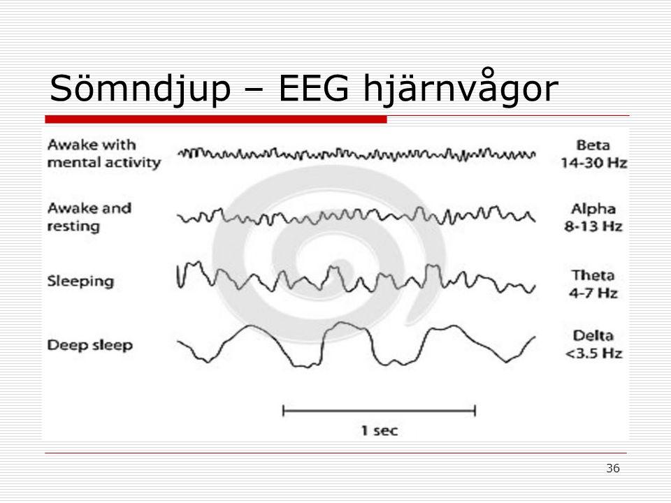 36 Sömndjup – EEG hjärnvågor