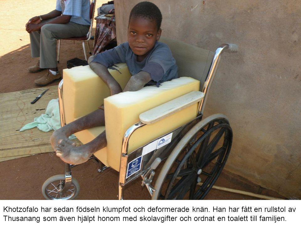 Khotzofalo har sedan födseln klumpfot och deformerade knän.