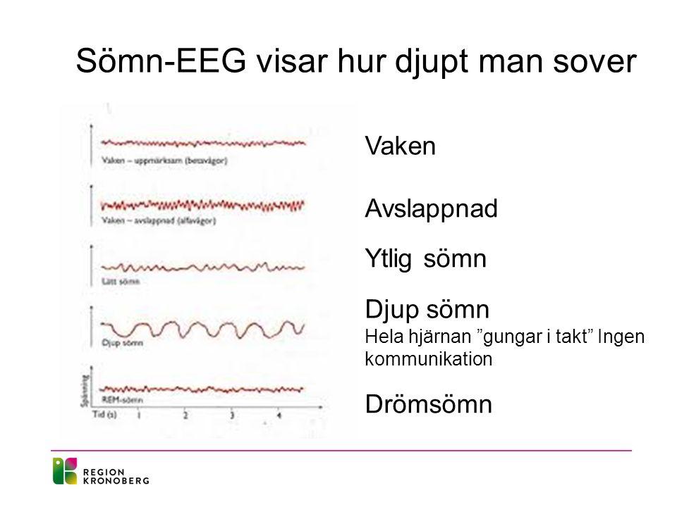 """Sömn-EEG visar hur djupt man sover Hela hjärnan """"gungar i takt"""" Ingen kommunikation Avslappnad Drömsömn Vaken Ytlig sömn Djup sömn"""