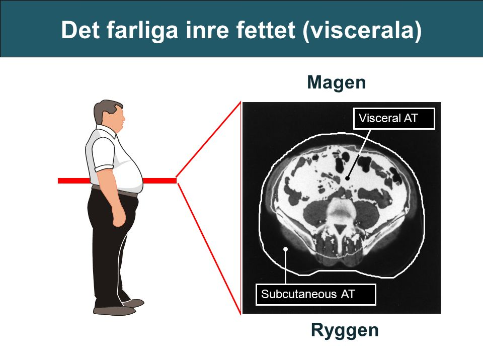 Det farliga inre fettet (viscerala) Visceral AT Subcutaneous AT Magen Ryggen