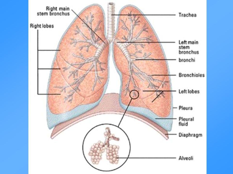 KOL - patogenes Inflammation Luftflödesbegränsning Parenkymdestruktion (emfysem) Förlust av fästpunkter Minskad elastisk återfjädring Bronkiolit Inflammation Remodeling Rökning