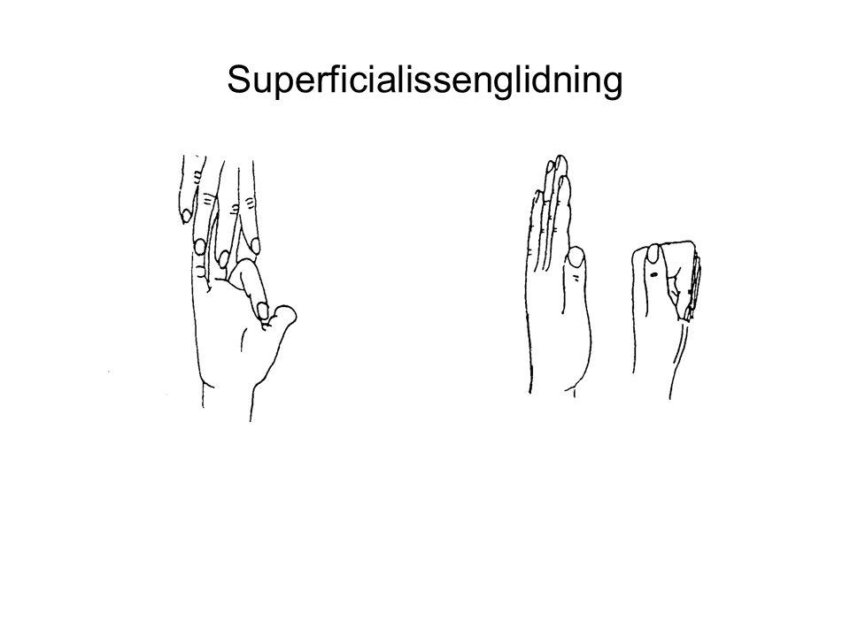 Superficialissenglidning