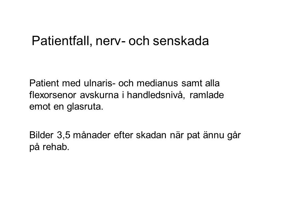 Patientfall, nerv- och senskada Patient med ulnaris- och medianus samt alla flexorsenor avskurna i handledsnivå, ramlade emot en glasruta. Bilder 3,5