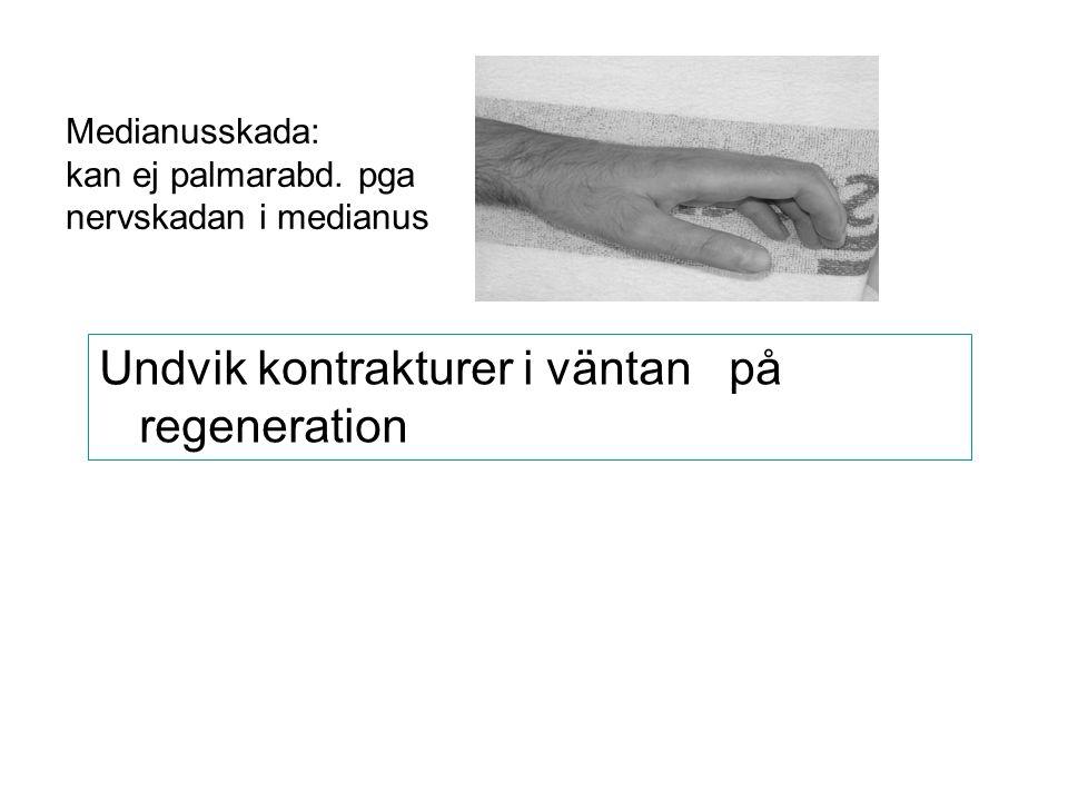 Medianusskada: kan ej palmarabd. pga nervskadan i medianus Undvik kontrakturer i väntan på regeneration