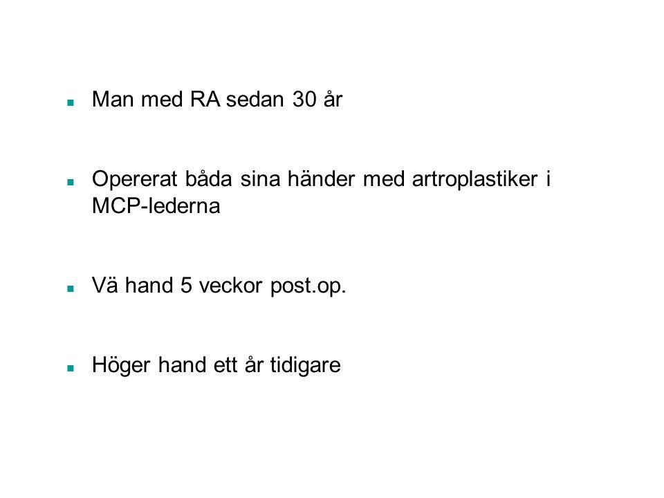 n Man med RA sedan 30 år n Opererat båda sina händer med artroplastiker i MCP-lederna n Vä hand 5 veckor post.op. n Höger hand ett år tidigare
