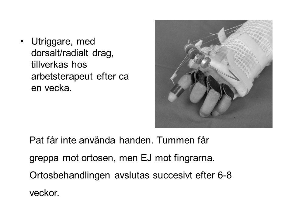 Utriggare, med dorsalt/radialt drag, tillverkas hos arbetsterapeut efter ca en vecka. Pat får inte använda handen. Tummen får greppa mot ortosen, men