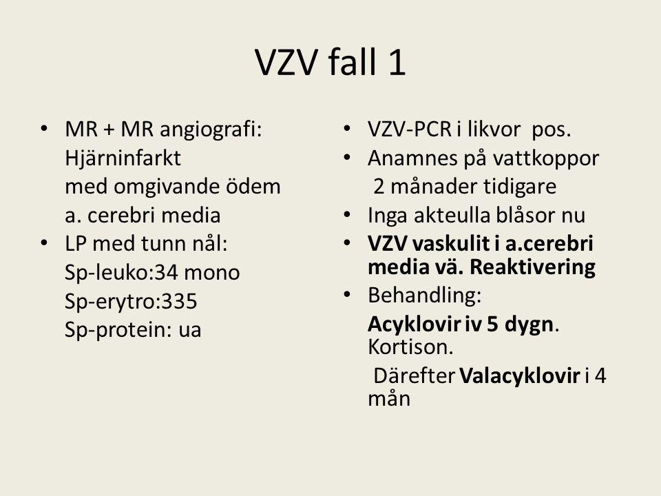 VZV fall 1 MR + MR angiografi: Hjärninfarkt med omgivande ödem a.