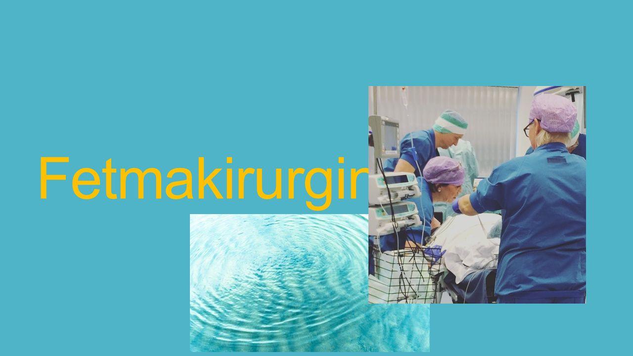 Fetmakirurgin