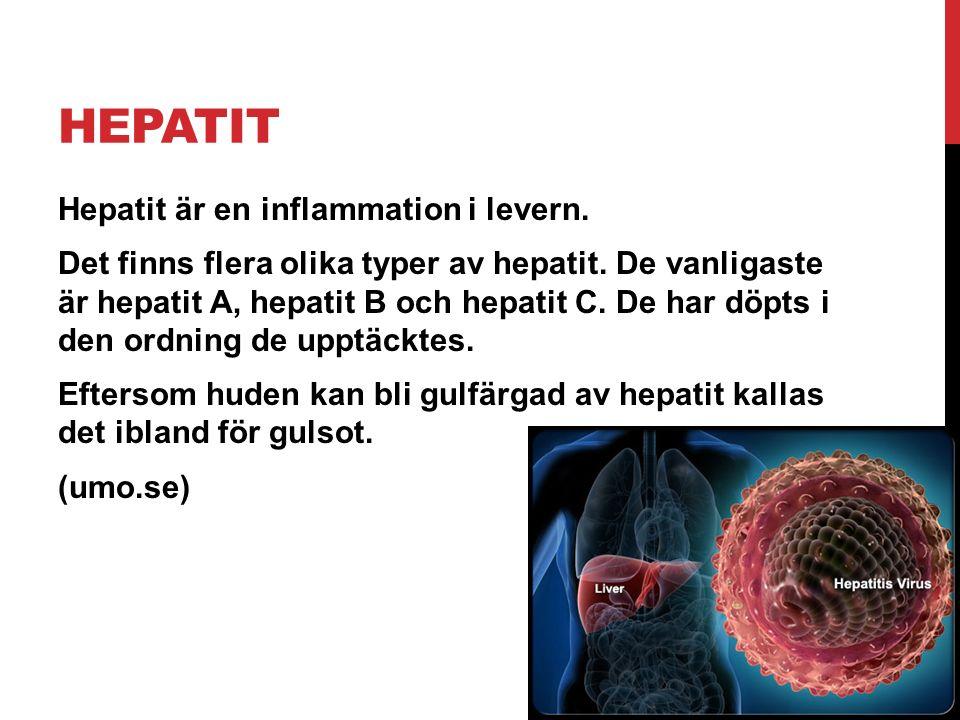 HEPATIT Hepatit är en inflammation i levern. Det finns flera olika typer av hepatit. De vanligaste är hepatit A, hepatit B och hepatit C. De har döpts
