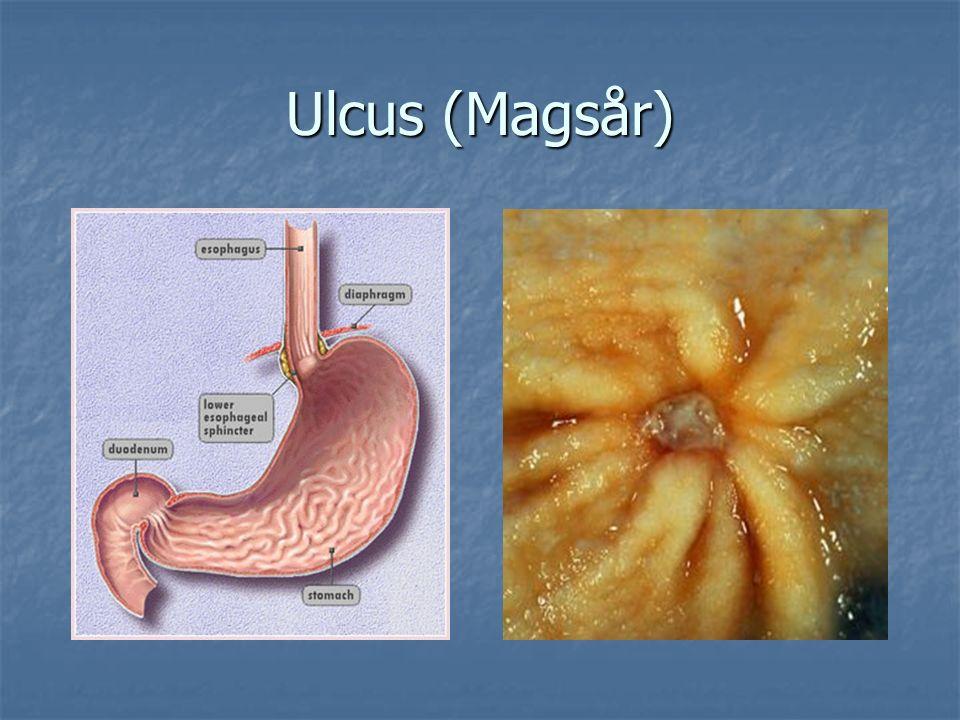 Ulcus (Magsår)