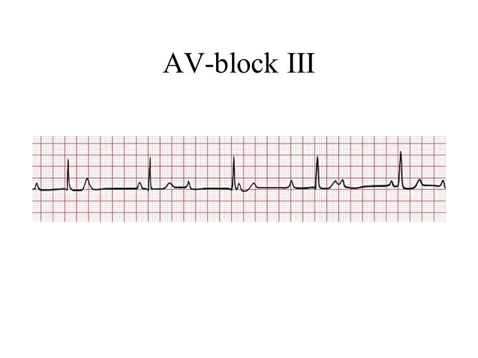 AV-block III