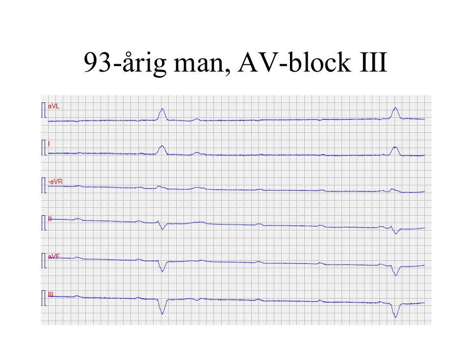 93-årig man, AV-block III