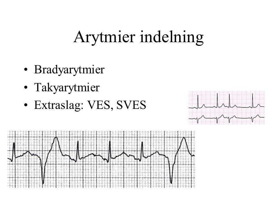 Takykardi med smala QRS, regelbunden - diagnos och behandling Esofagus-EKG.