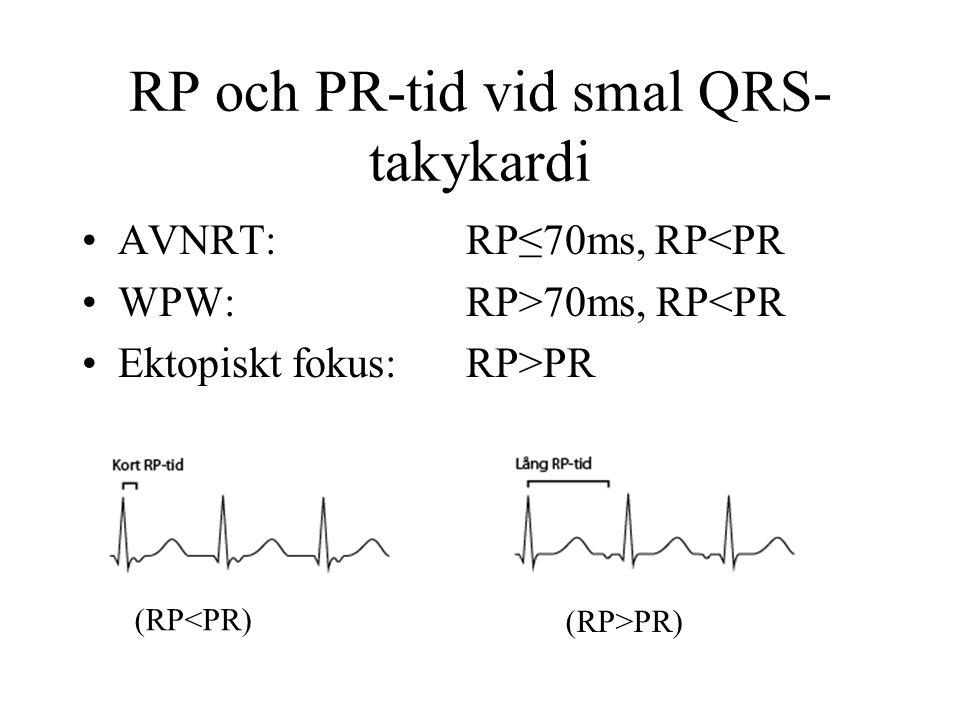 RP och PR-tid vid smal QRS- takykardi AVNRT:RP≤70ms, RP<PR WPW:RP>70ms, RP<PR Ektopiskt fokus:RP>PR (RP>PR) (RP<PR)