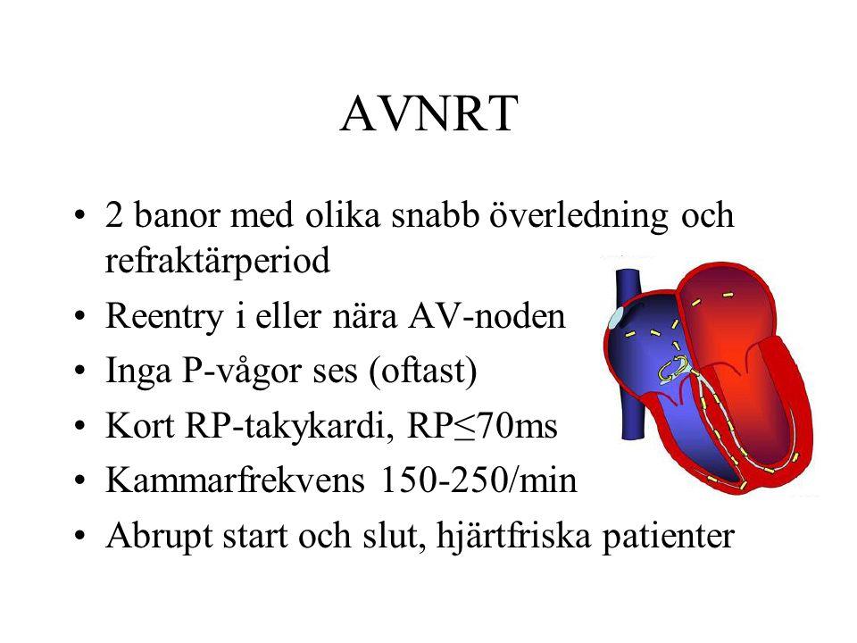 AVNRT 2 banor med olika snabb överledning och refraktärperiod Reentry i eller nära AV-noden Inga P-vågor ses (oftast) Kort RP-takykardi, RP≤70ms Kammarfrekvens 150-250/min Abrupt start och slut, hjärtfriska patienter