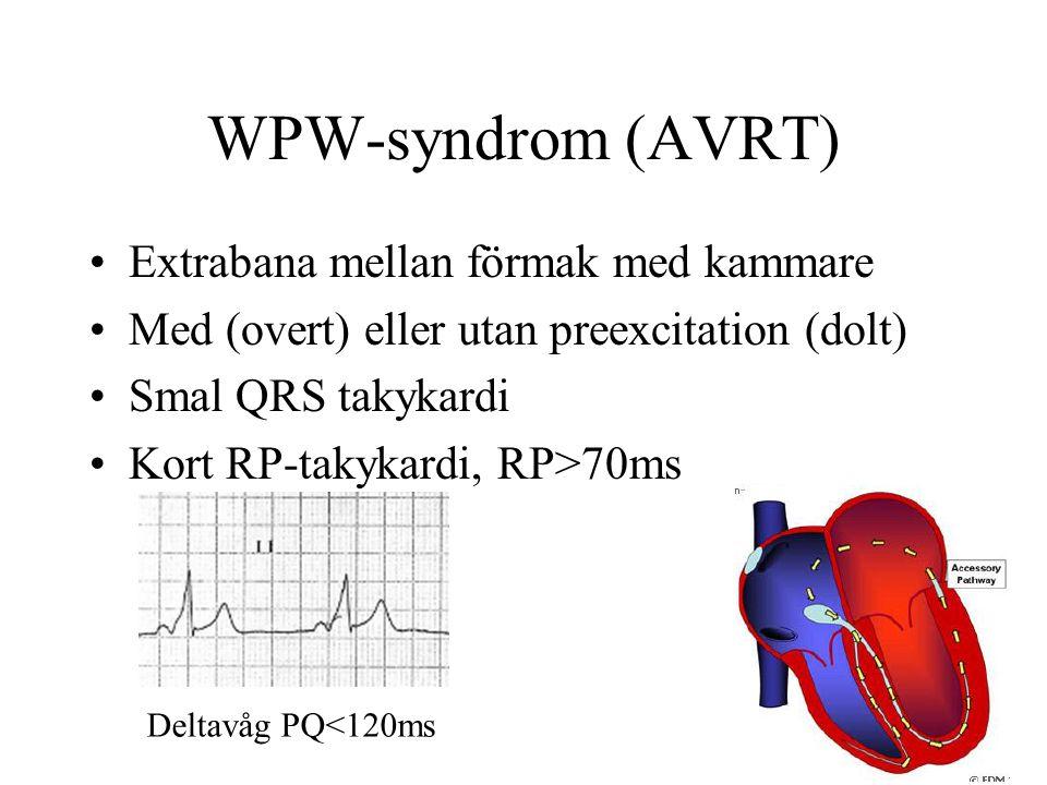 WPW-syndrom (AVRT) Extrabana mellan förmak med kammare Med (overt) eller utan preexcitation (dolt) Smal QRS takykardi Kort RP-takykardi, RP>70ms Deltavåg PQ<120ms