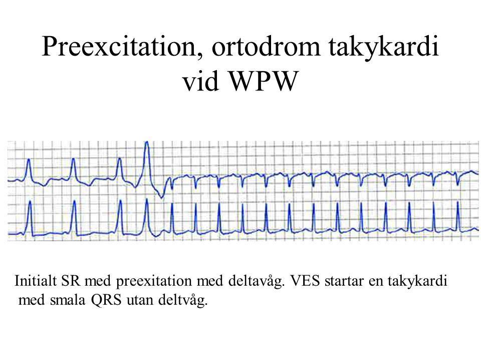 Preexcitation, ortodrom takykardi vid WPW Initialt SR med preexitation med deltavåg.