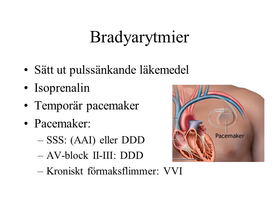 Bradyarytmier Sätt ut pulssänkande läkemedel Isoprenalin Temporär pacemaker Pacemaker: –SSS: (AAI) eller DDD –AV-block II-III: DDD –Kroniskt förmaksflimmer: VVI
