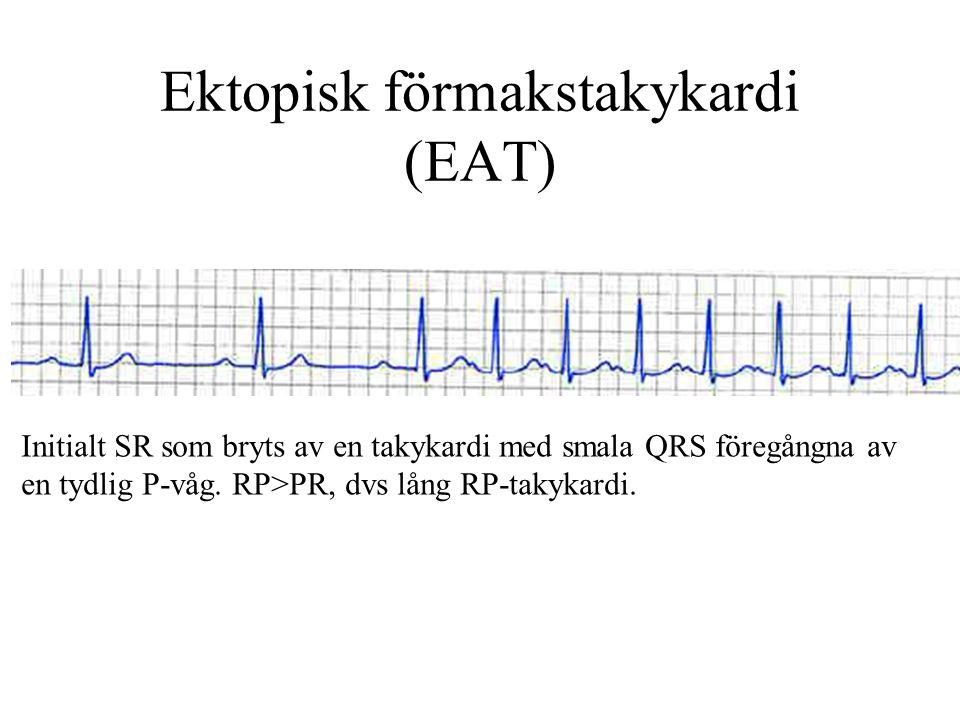 Ektopisk förmakstakykardi (EAT) Initialt SR som bryts av en takykardi med smala QRS föregångna av en tydlig P-våg.