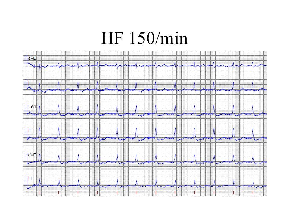 HF 150/min