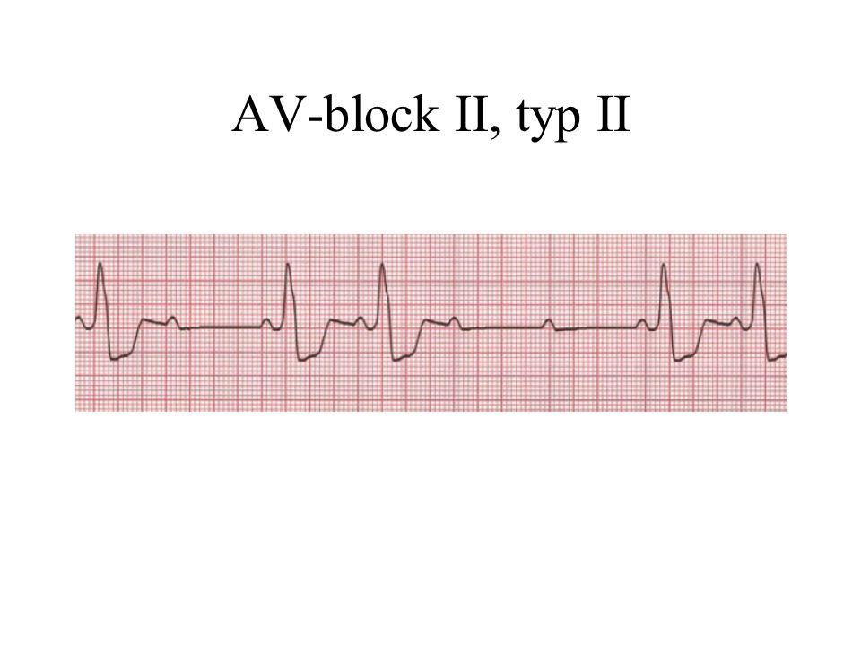 AV-block II, typ II