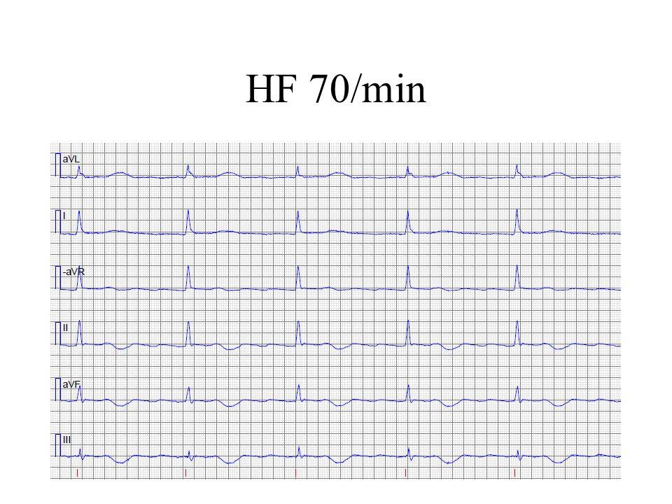 HF 70/min