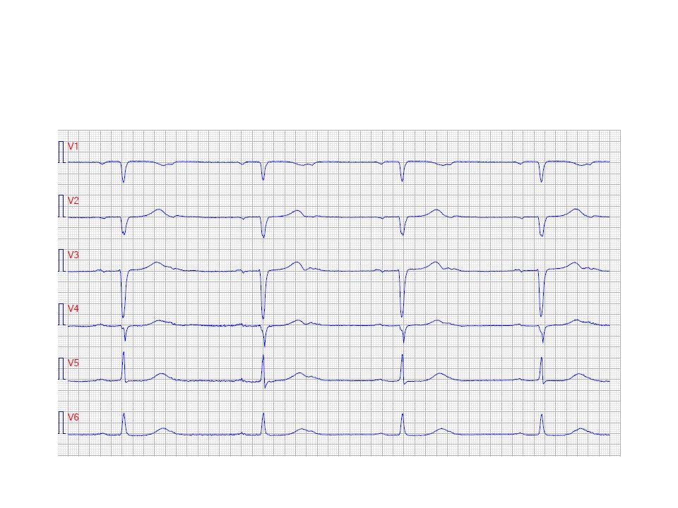 Regelbunden takykardi med smala QRS (WPW)