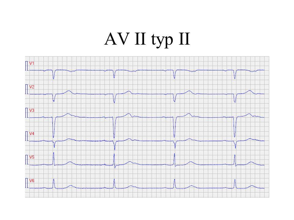 AV II typ II