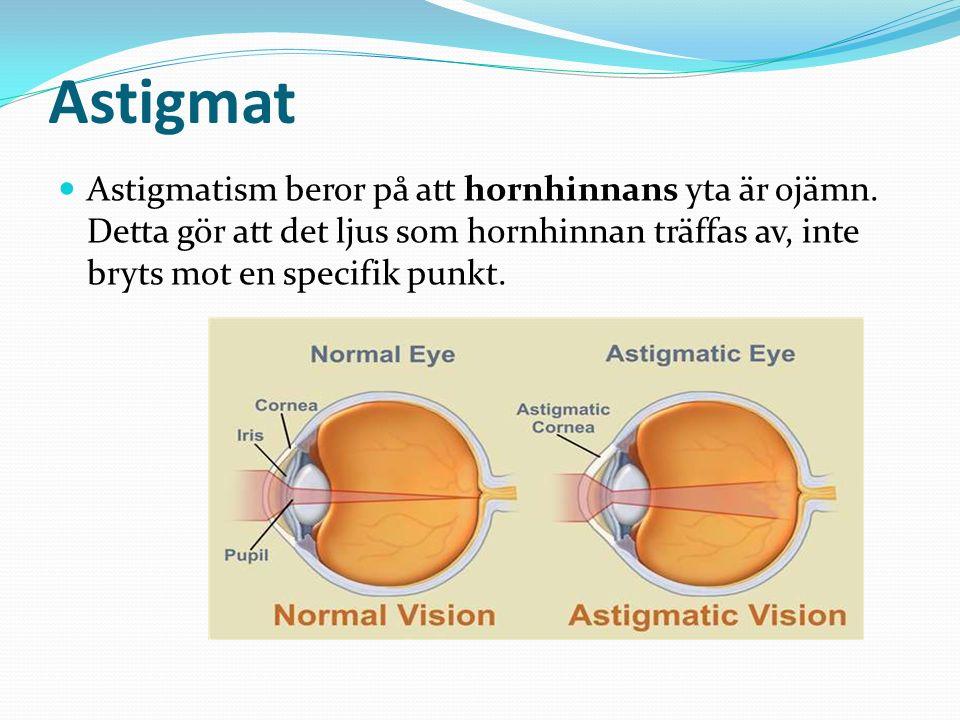 Astigmat Astigmatism beror på att hornhinnans yta är ojämn.