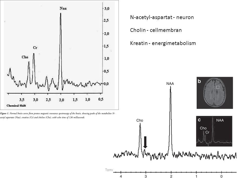 Tommy Stödberg41 N-acetyl-aspartat - neuron Cholin - cellmembran Kreatin - energimetabolism