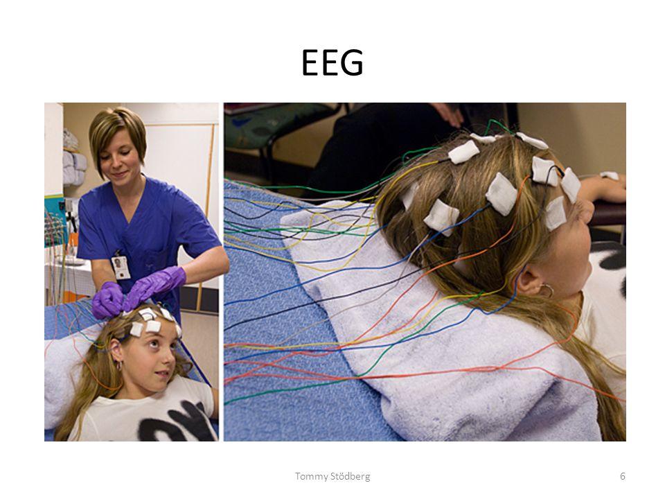 Ett annat typiskt scenario Ett barn debuterar med epileptiska anfall i nyföddhetsperiod eller under första 1-2 levnadsåren Insjuknandeincidensen som högst i nyföddhets- och spädbarnsperiod Förekomsten av underliggande sjukdom/skada som högst Titta efter associerade symtom, kan initialt vara diskreta ± motorisk påverkan (hypotonus, hypertonus, dystoni, ataxi) ± kognitiv försening ± mikro-/makrocephali ±dysmorfologi o/e organmissbildningar ± utlöst av katabol belastning (nyfödd, infektion, svält) o/e del i metabol kris /akut encephalopati Utvecklar ofta multipla anfallstyper: fokal lesion fokala anfall bilaterala nätverk störs spasmer och/eller generaliserade anfall