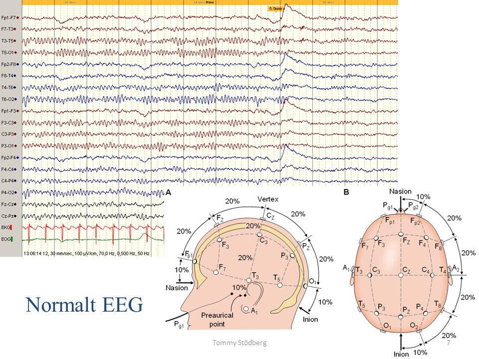 Adolescens – Vuxen Juvenil absens epilepsi (JAE) Juvenil myoklon epilepsi (JME) Epilepsi med generaliserade toniska–kloniska anfall Progressiv myoklonus epilepsi (PME) Autosomal dominant epilepsi med auditiva symtom (ADEAF) Andra familjära temporal lobs epilepsier Tommy Stödberg18